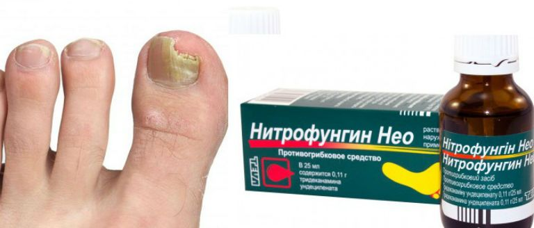 Нитрофунгин от грибка ногтей, инструкция по применению