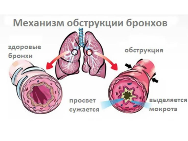 Обструктивный бронхит у взрослых симптомы и лечение