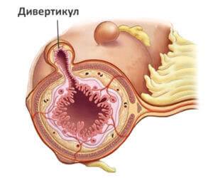 Выпячивания кишечника