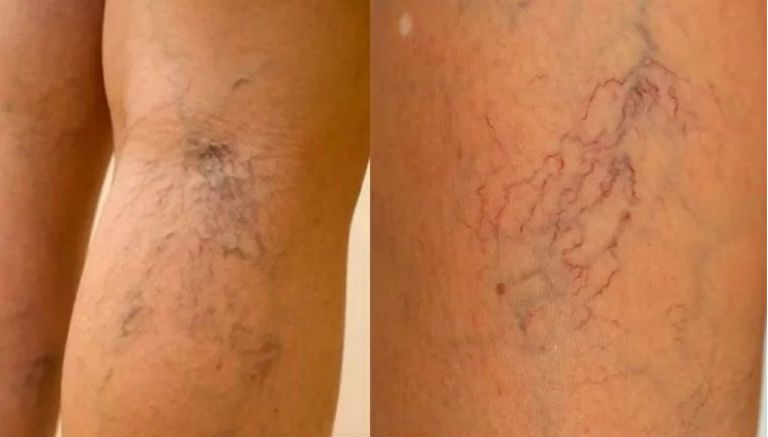Что такое варикоз вен на ногах, причина возникновения