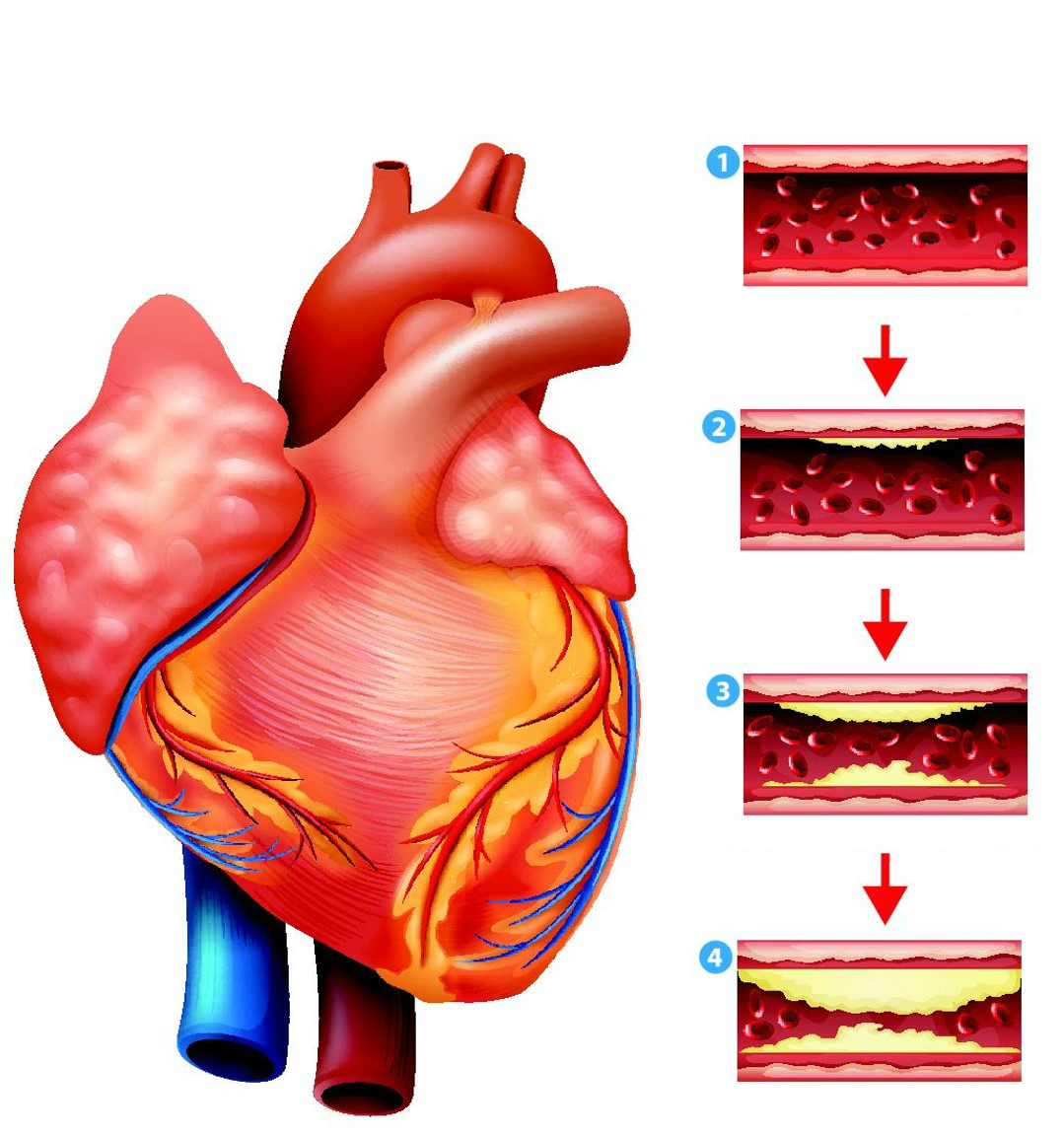ишемическая болезнь сердца и инсульт