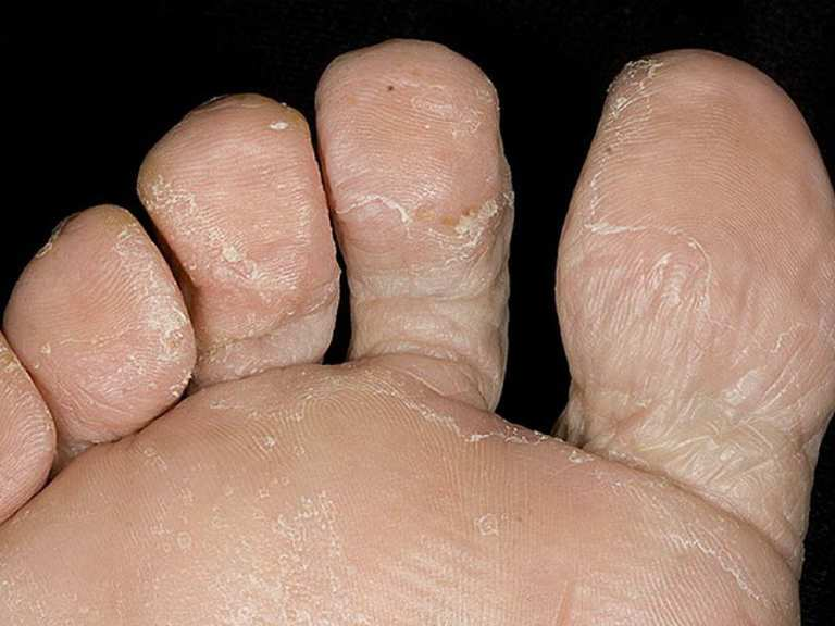 Картинки грибка ног