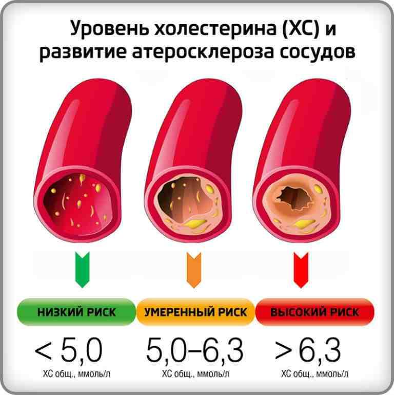 Холестерин в крови повышен, причины, как лечить
