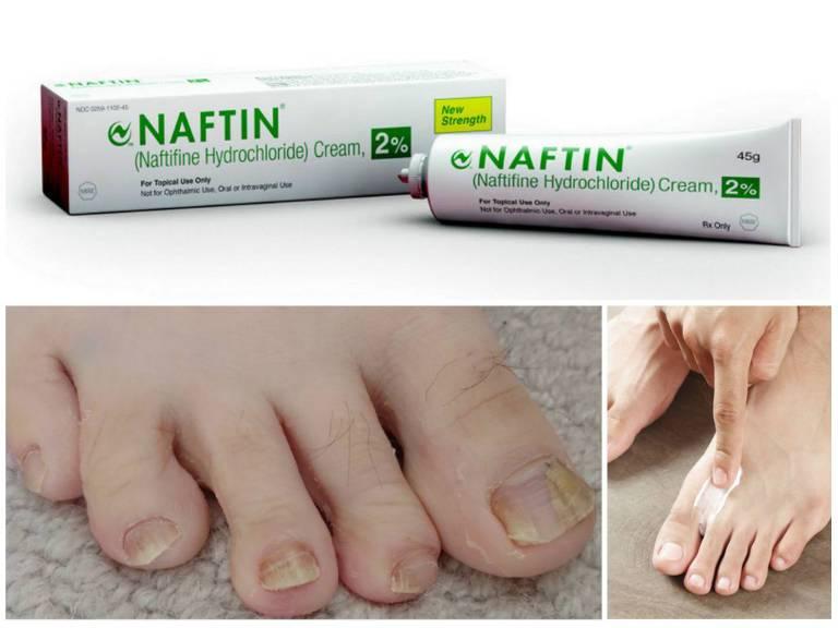 Нафтифин от грибка ногтей, цена