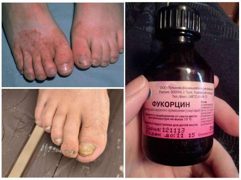 Фукорцин от грибка ногтей, инструкция по применению