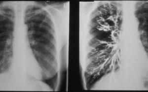 Бронхограмма - способ диагностики бронхоэктазов