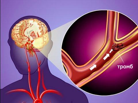 ишемический вид инсульта