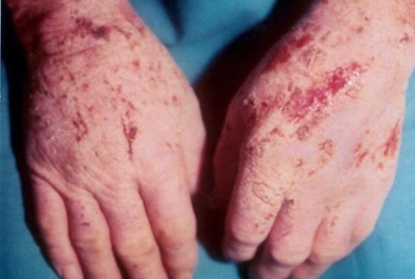 Признаки токсико-аллергического дерматита