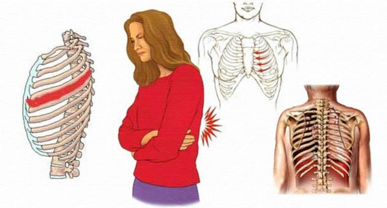 Межреберная невралгия слева, симптомы и лечение, таблетки