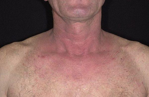 Аллергический дерматит у взрослых