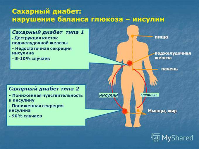 Гиперфункция и гипофункция поджелудочной железы: не верное лечение сахарного диабета