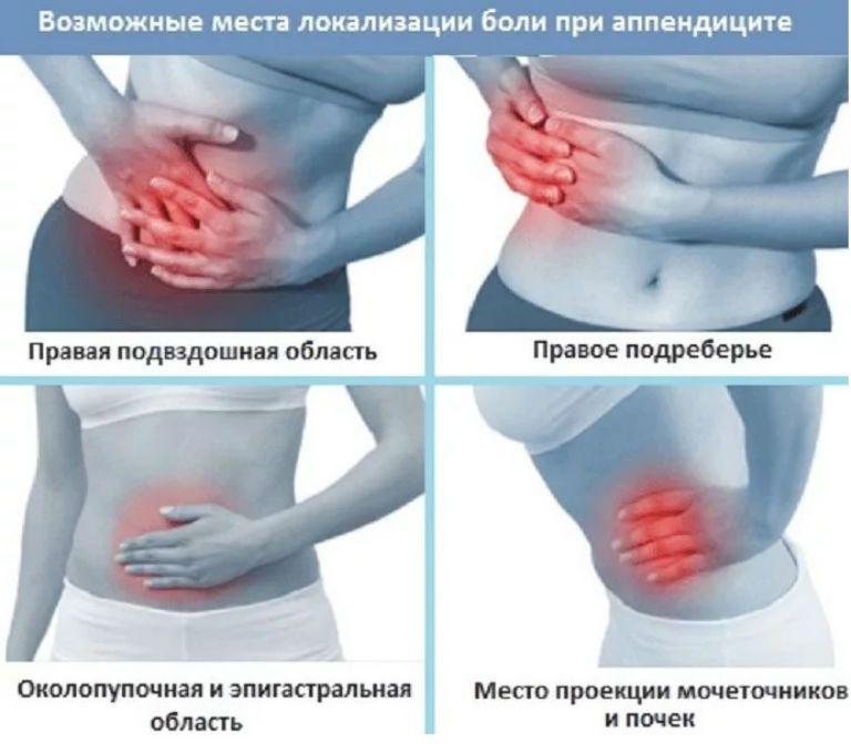 Где болит аппендицит, симптомы у взрослых и детей