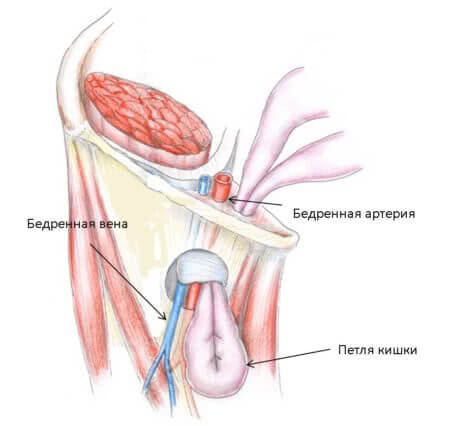 Анатомия грыжи в паху