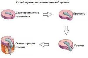 Стадии развития патологии позвоночника