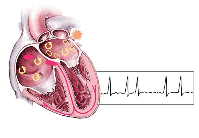 мерцательная аритмия и инсульт
