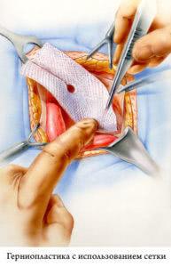 Герниопластика