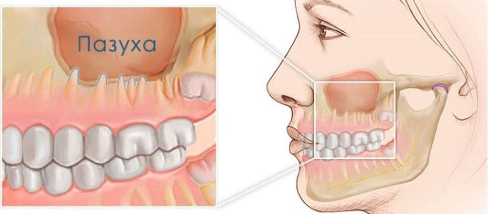 можно ли лечить зубы при гайморите