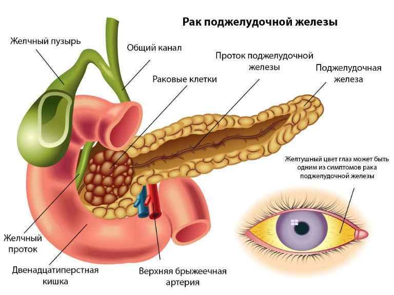 Рак поджелудочной железы, симптомы, проявление