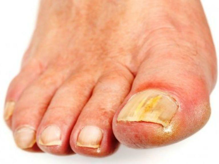 Грибок ногтей на ногах, лечение в домашних условиях
