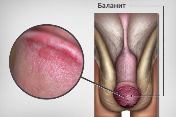 Баланит на головке полового органа мужчины