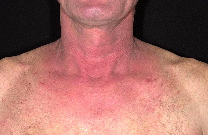 Симптомы аллергического дерматита кожного покрова