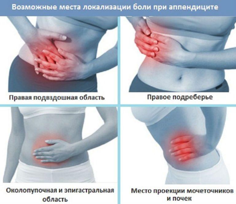 С какой стороны аппендицит у человека и симптомы