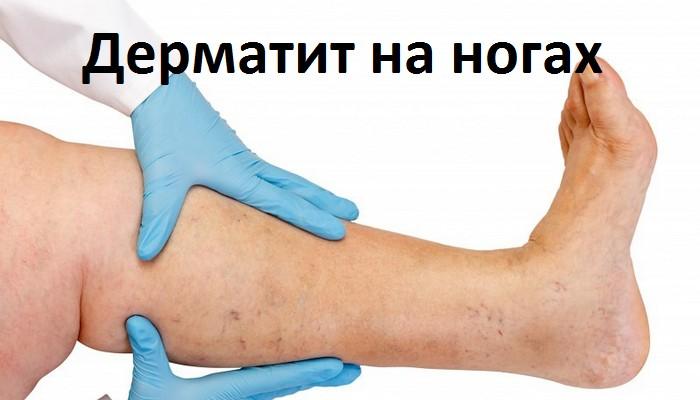 симптомы контактного дерматита ног