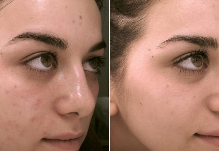Гликолевый пилинг: фото до и после