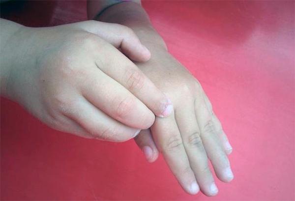 Виды дерматита на руках. Лечение недуга при беременности и у детей