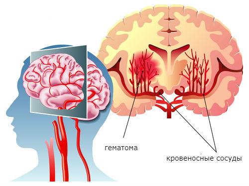 схема геморрагический инсульт