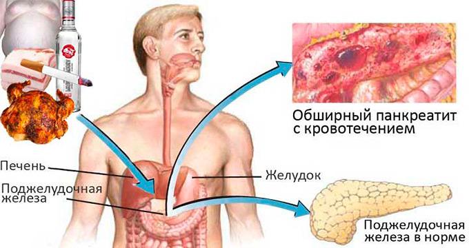 Профилактика острого и хронического панкреатита: первичная и вторичная профилактика