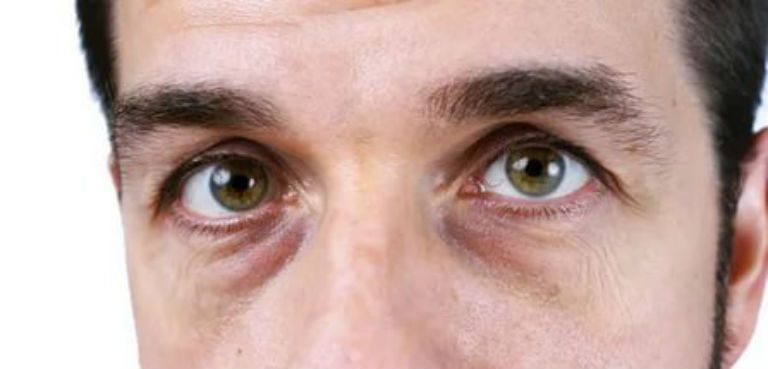 Мешки под глазами причины и лечение у мужчин